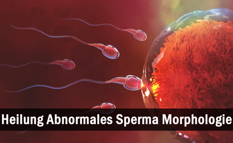 Heilen Anormal Sperma Morphologie