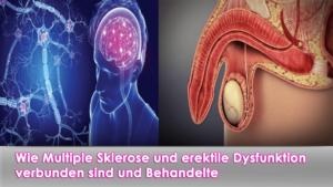 Wie Multiple Sklerose und erektile Dysfunktion verbunden sind und Behandelte