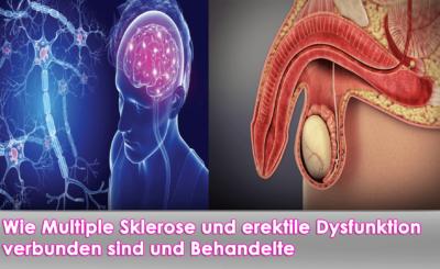 Multiple Sklerose und erektile Dysfunktion