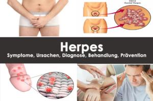 Herpes: Symptome, Ursachen, Diagnose, Behandlung, Prävention