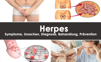 Herpes: Symptome, Ursachen
